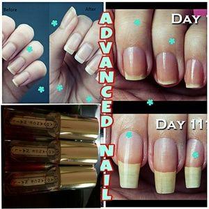 Advance nail